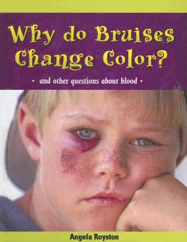 Download Why Do Bruises Change Color?